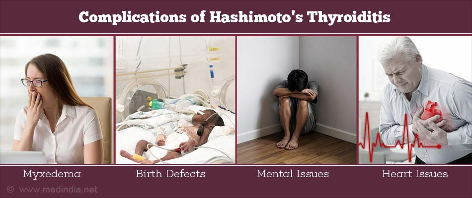 Complications of Hashimoto's Thyroiditis