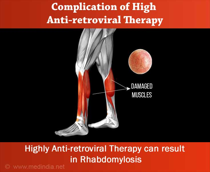 Complication of Highly Active Antiretroviral Therapy - Rhabdomyolysis
