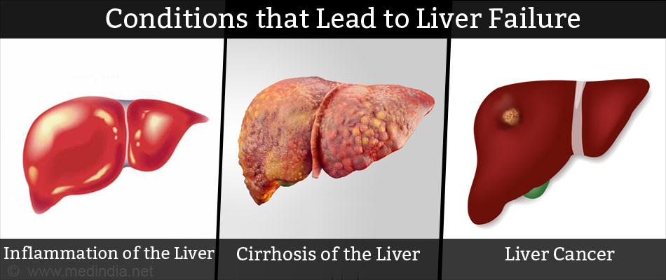 Conditions that Leads to Liver Failure