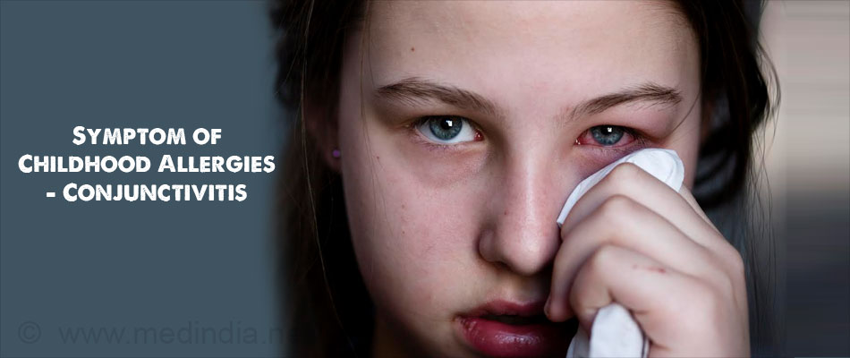 Symptom of Childhood Allergies - Conjunctivitis