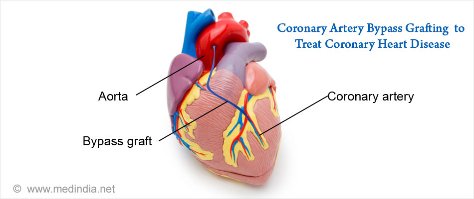 Coronary Artery Bypass Grafting to Treat Coronary Heart Disease