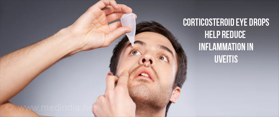 Corticosteroid Eye Drops Help Reduce Inflammation in Uveitis