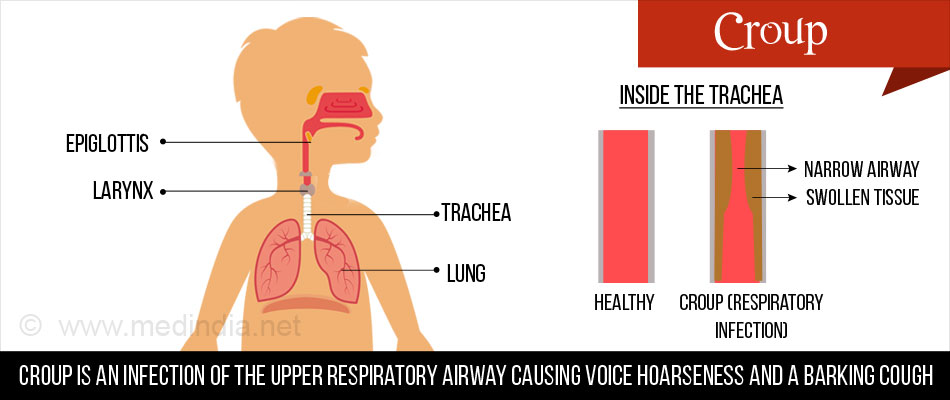 Croup - Respiratory Infection