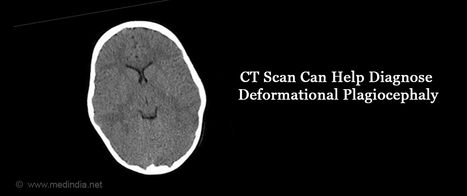 CT Scan Can Help Diagnose Deformational Craniosynostosis