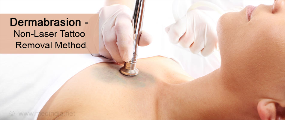 Dermabrasion - Non-Laser Tattoo Removal Method