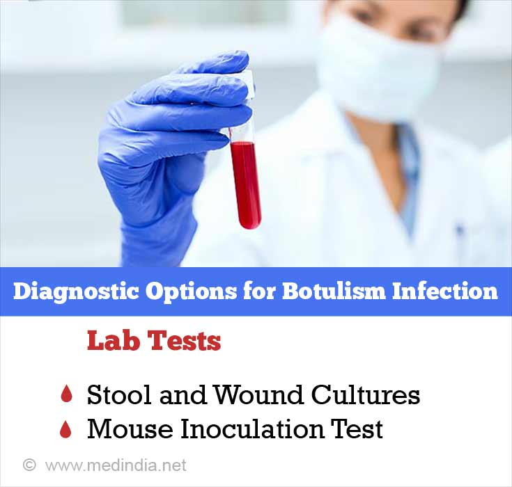 Diagnostic Options for Botulism Infection