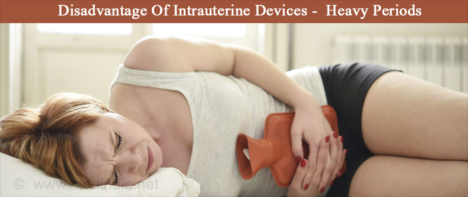 Disadvantages of Intrauterine Devices - Heavy Periods
