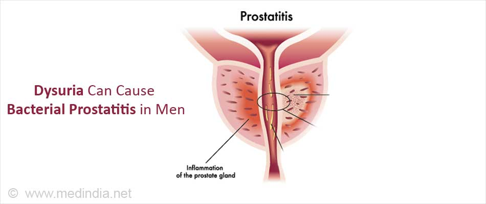 Dysuria Can Cause Bacterial Prostatitis in Men