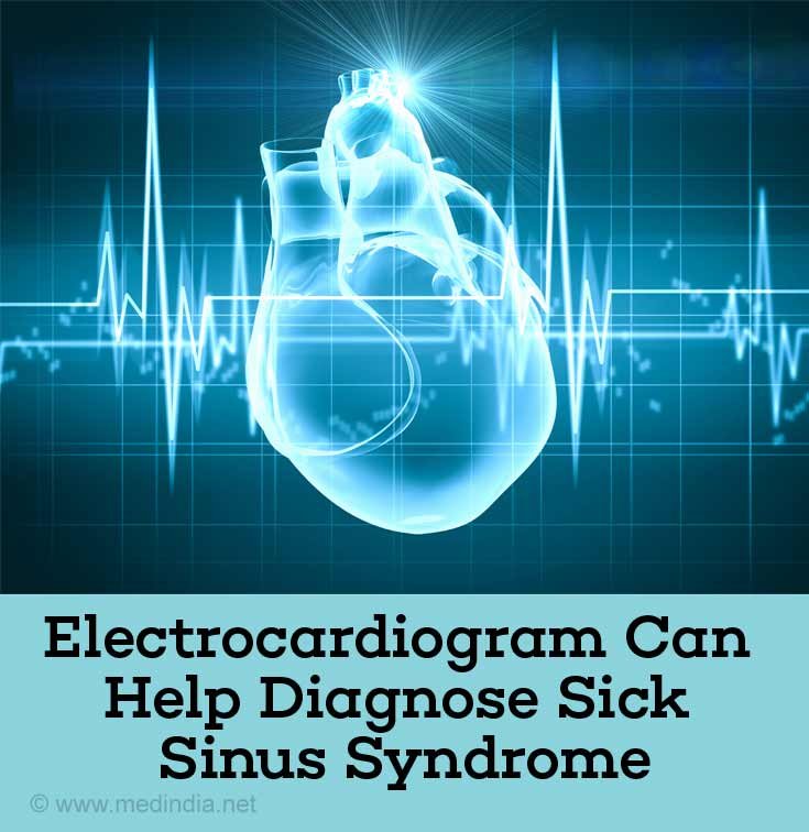 Electrocardiogram can Helps to Diagnose Sick Sinus Syndrome