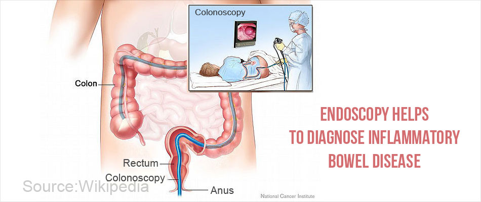 Endoscopy Helps to Diagnose Inflammatory Bowel Disease