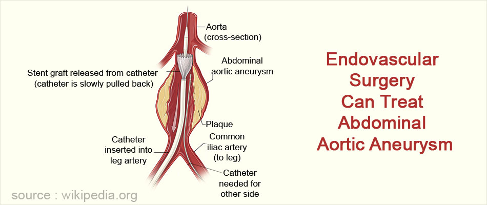 Endovascular Surgery Can Treat Abdominal Aortic Aneurysm