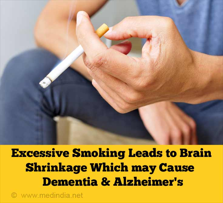 Excessive smoking Leads to Brain Shrinkage which May Cause Dementia & Alzheimer's