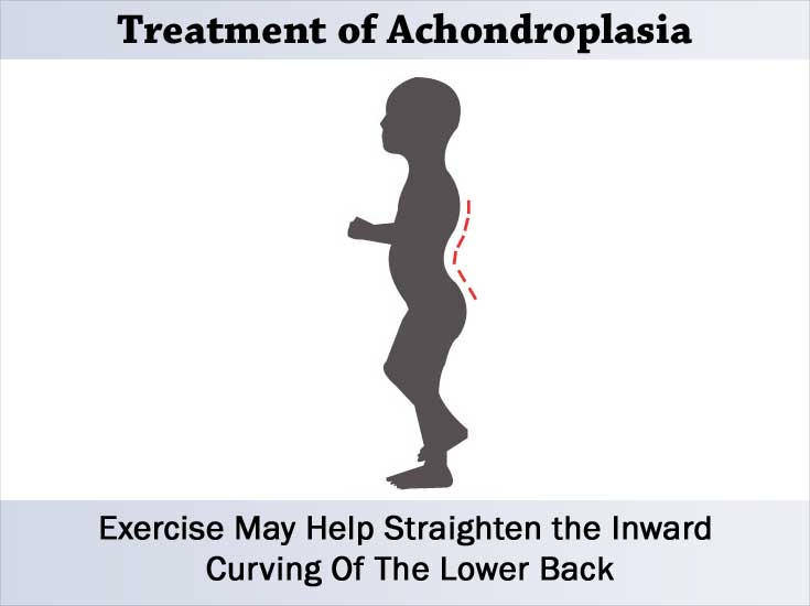 Exercises May Help Straighten the Inward Curving Of The Lower Back