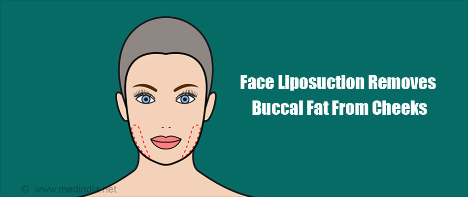 Face Liposuction Removes Buccal Fat From Cheeks