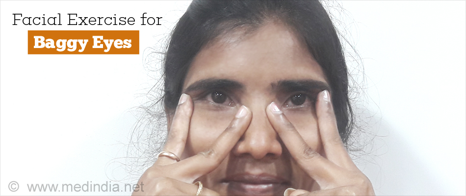 Facial Exercise for Baggy Eyes
