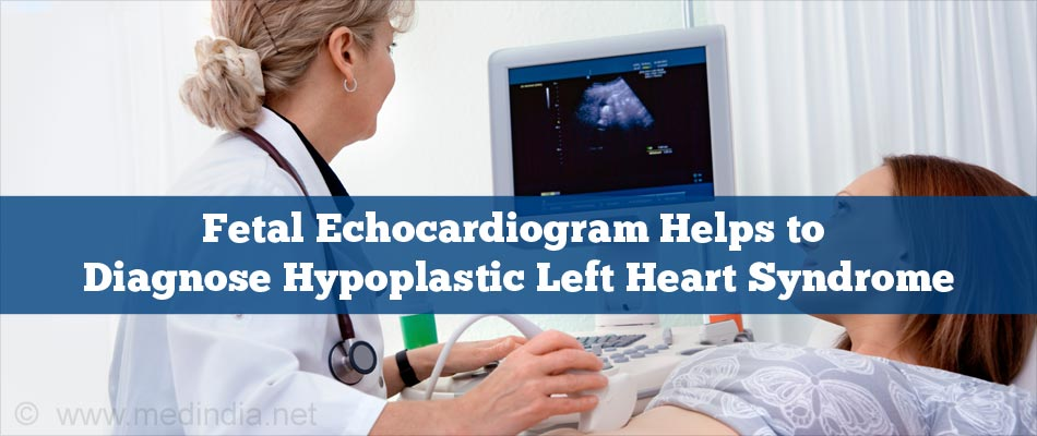 Fetal Echocardiogram Helps to Diagnose Hypoplastic Left Heart Syndrome