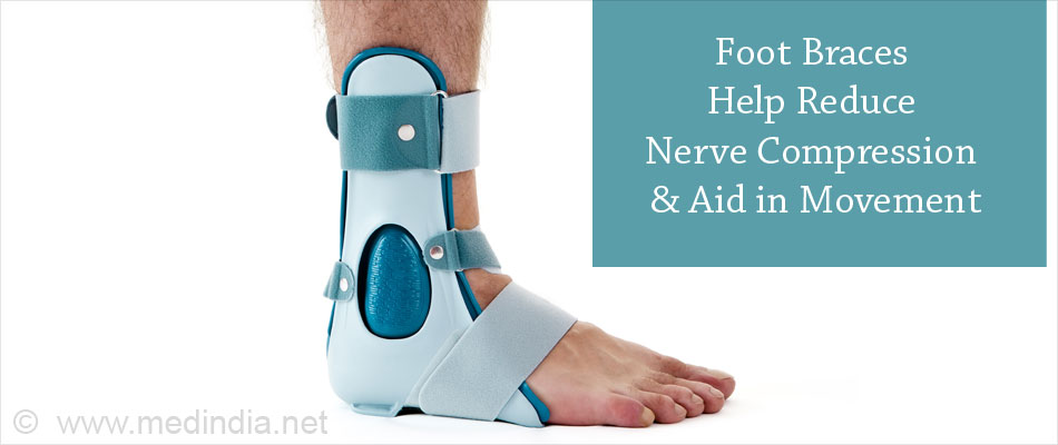 Foot Braces Helps Reduce Nerve Compression & Aid in Movement