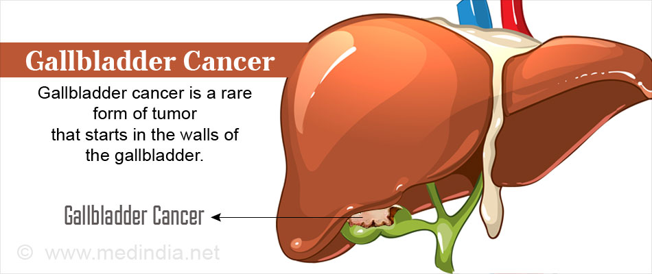 Gallbladder Cancer