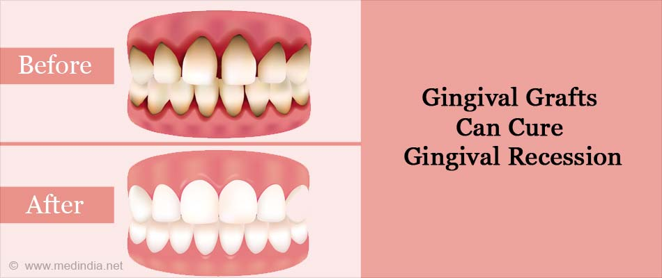 Gingival Grafts Can Cure Gingival Recession