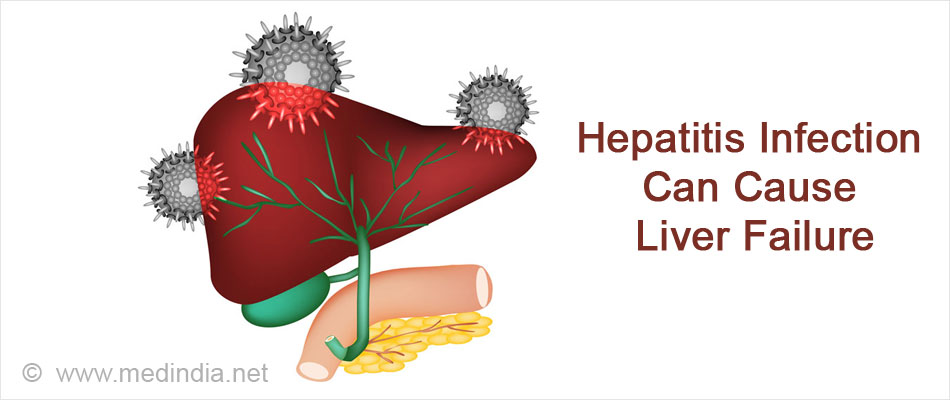 Hepatitis Infection Can Cause Liver Failure