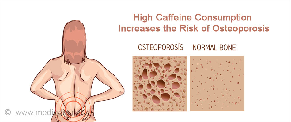 High Caffeine Consumption Increases the Risk of Osteoporosis