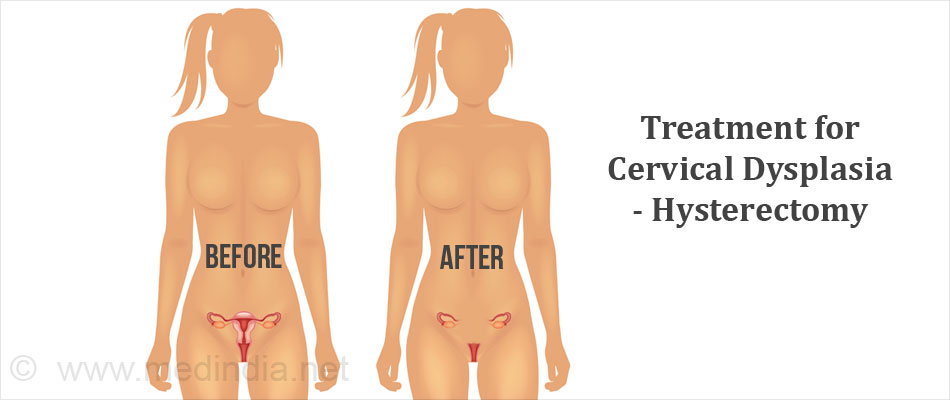 Treatment for Cervical Dysplasia - Hysterectomy