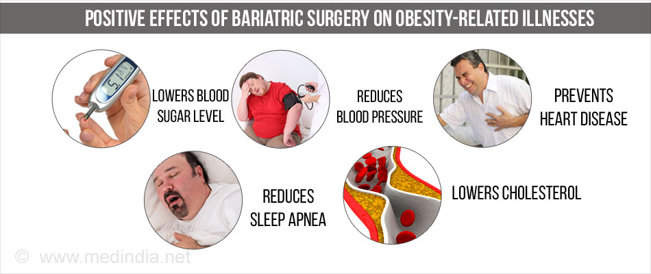 Improvement of Obesity Related Illness After Baraitric Surgery