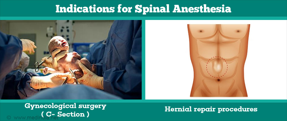 Indications for Spinal Anesthesia