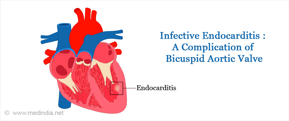 Infective Endocarditis : A Complication of Bicuspid Aortic Valve