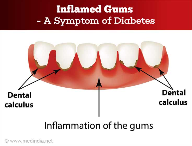 Inflames Gums For Diabetes