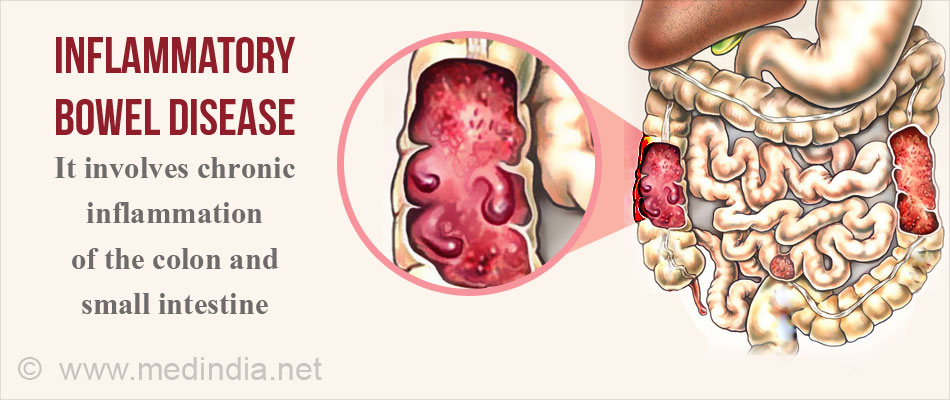 the history causes and symptoms of the inflammatory bowel disease Inflammatory bowel disease (ibd) is a group of disorders that cause swelling and   to the bowel, some inflammatory bowel disease (ibd) patients have no  symptoms  of course, medical history and other tests are also vital to the  diagnosis.