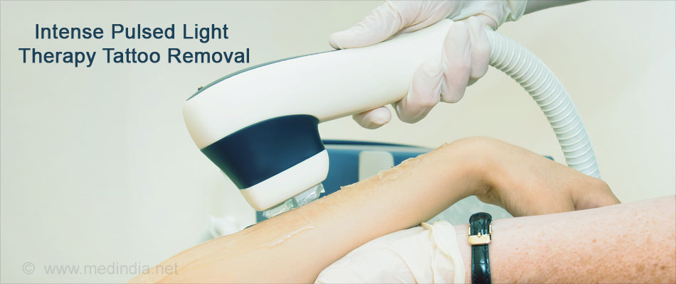 Intense Pulsed Light Therapy Tattoo Removal