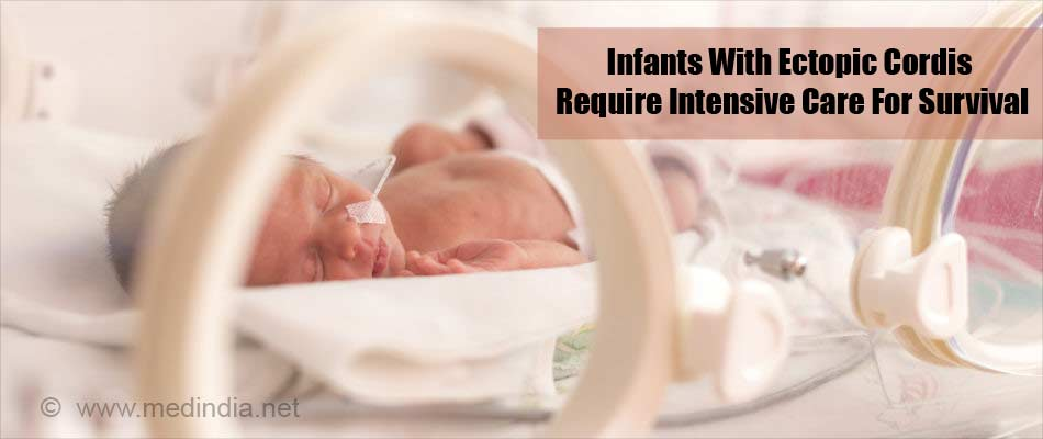Infants With Ectopic Cordis Require Intensive Care For Survival
