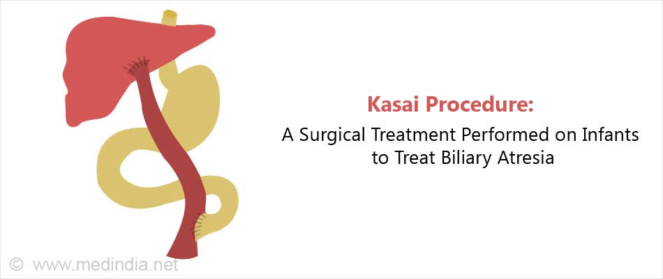 Kasai Procedure: A Surgical Treatment Performed on Infants to Treat Biliary Atresia