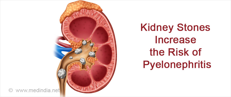 Kidney Stones Increases the Risk of Pyelonephritis