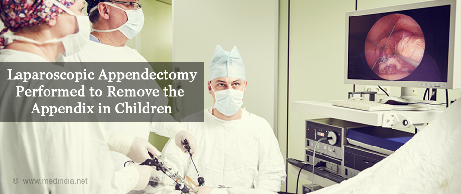 Laparoscopic Appendectomy Performed to Remove the Appendix in Children
