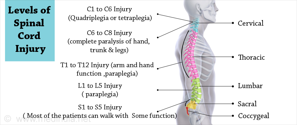 Spinal cord injury causes symptoms diagnosis treatment what are the levels of spinal cord injury sciox Images