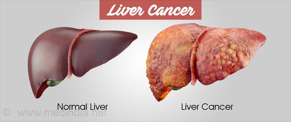 Liver Cancer Types Causes Symptoms Diagnosis