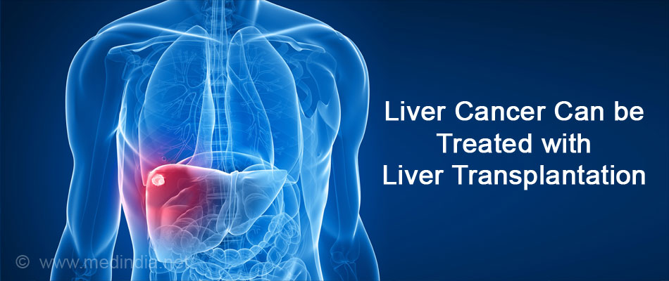 Liver Cancer Can be Treated with Liver Transplantation