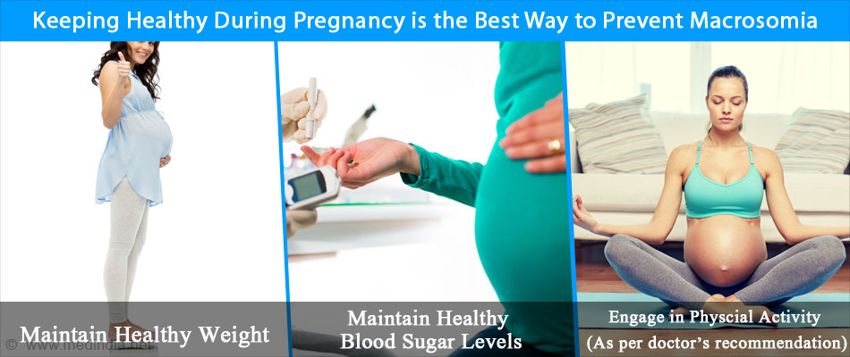 Maintaining Good Health During Pregnancy is the Possible Way to Prevent Macrosomia