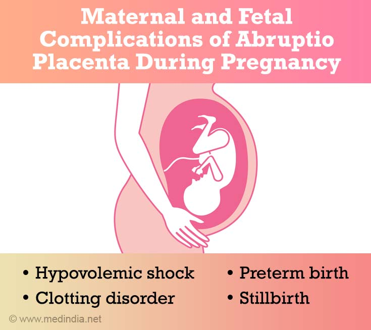 Maternal And Fetal Complications of Abruptio Placenta Durin Preganacy