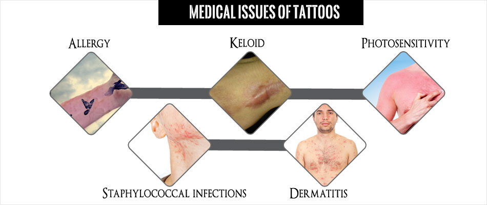 Medical Issues Of Tattoos