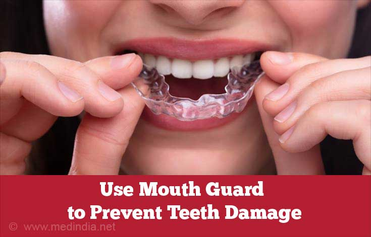 Use Mouth Guard to Prevent Teeth Damage