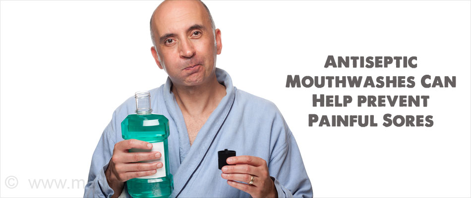 Antiseptic Mouthwashes Can Help prevent Painful Sores