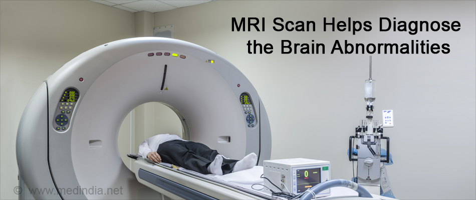 MRI Scan Helps Diagnose the Brain Abnormalities