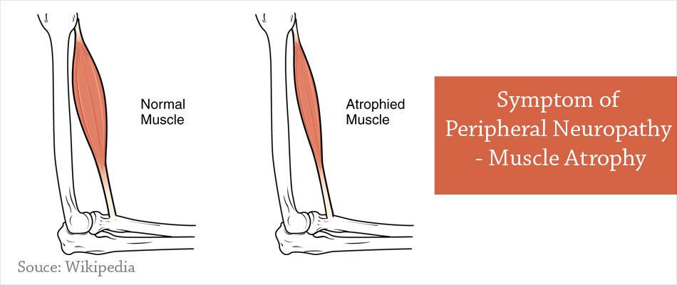 Symptom of Peripheral Neuropathy - Muscle Atrophy