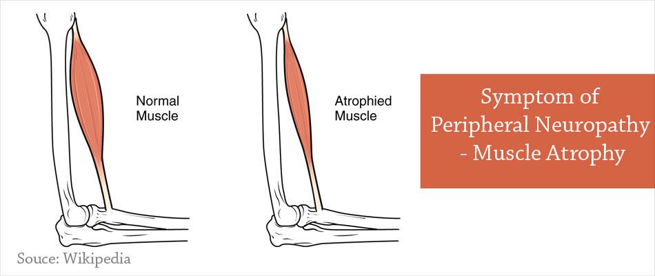 peripheral neuropathy - types, causes, symptoms, diagnosis, Skeleton