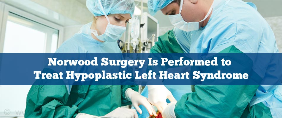 Norwood Procedure Surgery Is Performed to Treat Hypoplastic Left Heart Syndrome