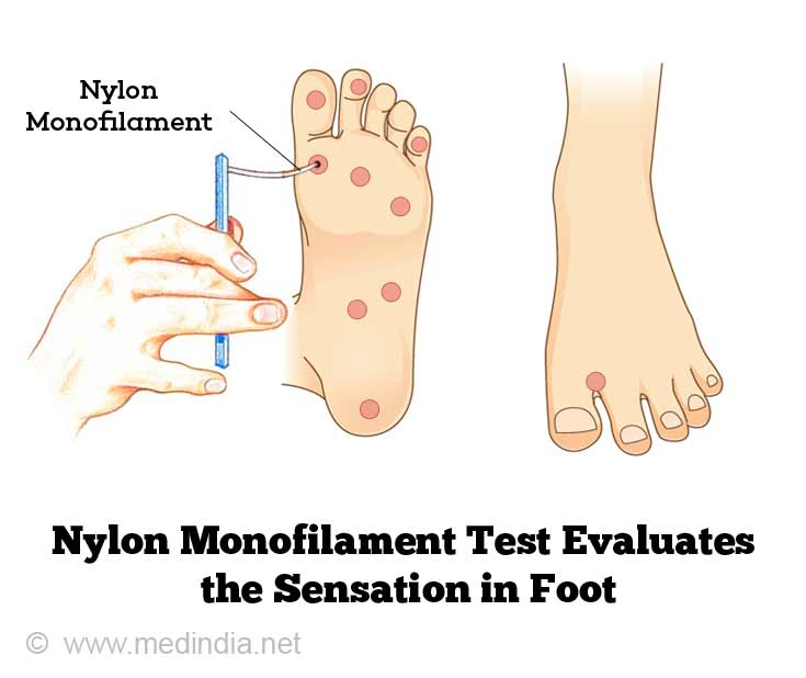 Nylon Monofilament Test Evaluate the Sensation in Foot