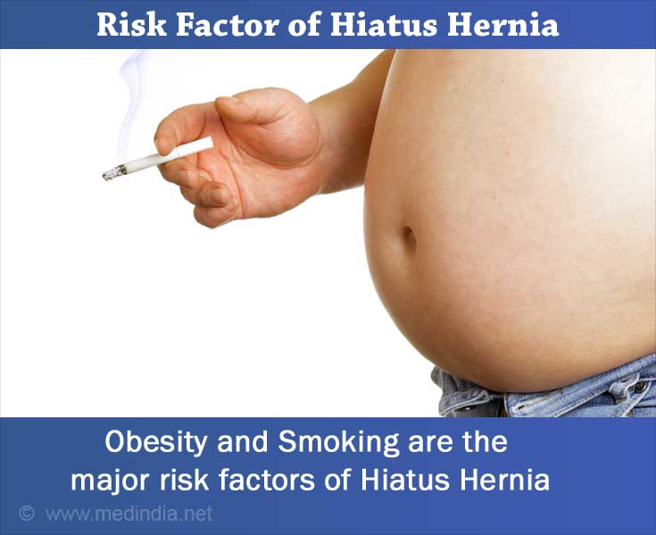 hiatus hernia - types, causes, symptoms, complications, diagnosis, Cephalic Vein